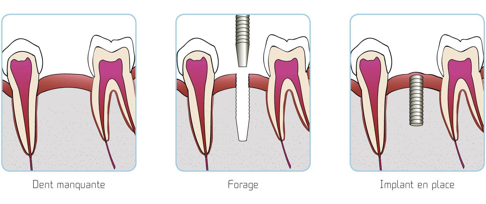 prothesiste dentaire lyon Dentidis, entreprise française basée sur lyon propose du matériel et des  fournitures aux professionnels de la santé: prothésistes dentaires, épithésistes,.