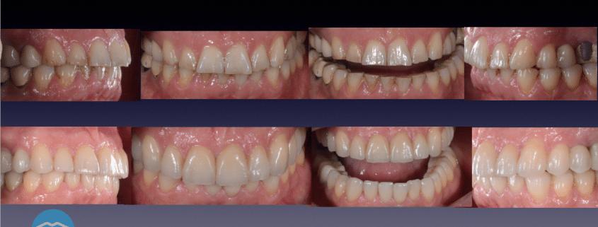 Traitement bruxisme Lyon - Dentiste Dr Touatii